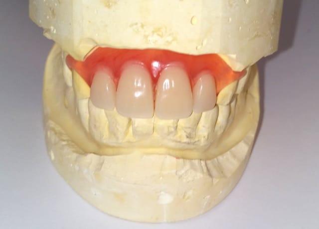 Reviews Dentures Affordable Flexible Partials Flipper Online