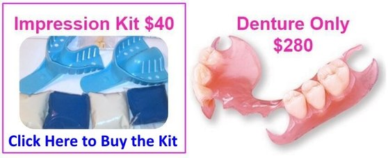 Blog need affordable low cost flexible partial dentures we can help improve you solutioingenieria Image collections